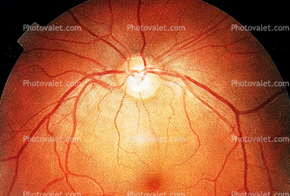 Cornea, Fovea, Macula, Retina, Optic Disk, Veins, Retinal Blood Vessels