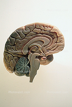 Cross Section of a Brain