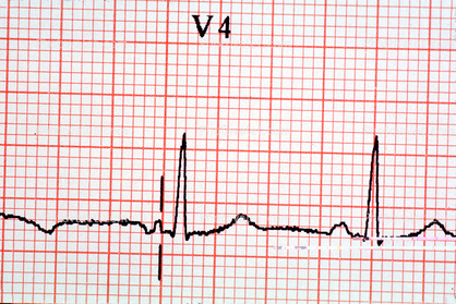 Spike, Heart and Pulse rate chart, ECG Images, Photography
