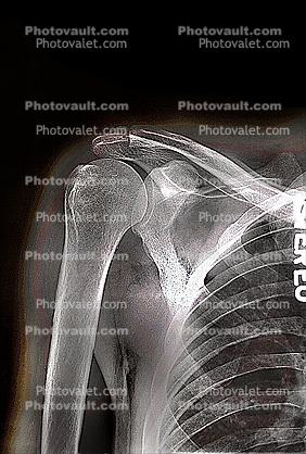 shoulder, X-Ray
