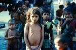 Malnourished Girl, Malnutrition, Hungry, Ribs, Slums, PLPV03P12_17