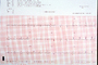 Heart and Pulse rate chart, ECG, HDEV01P03_01
