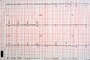 Heart and Pulse rate chart, ECG, HDEV01P03_02