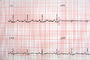 Heart and Pulse rate chart, ECG, HDEV01P03_03