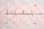 Heart and Pulse rate chart, ECG, HDEV01P03_04