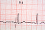 Heart and Pulse rate chart, ECG