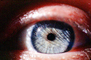 Eyeball, Iris, Lens, Pupil, Eyelash, Cornea, Sclera, Male, Man