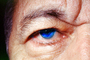 Eyeball, Iris, Lens, Pupil, Eyelash, Cornea, Sclera, Man, Male, skin, Eye Brow, Eyebrow