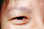 Eyeball, Iris, Lens, Pupil, Asian, Cornea, Sclera, Man, Male, skin, Eye Brow, Eyebrow