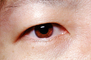 Eyeball, Iris, Lens, Pupil, Cornea, Sclera, Man, Male, skin, Eye Brow, Eyebrow