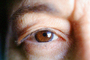 Eyeball, Iris, Lens, Pupil, Cornea, Sclera, Man, Male, skin, Eye Brow, Eyebrow, Eyelash